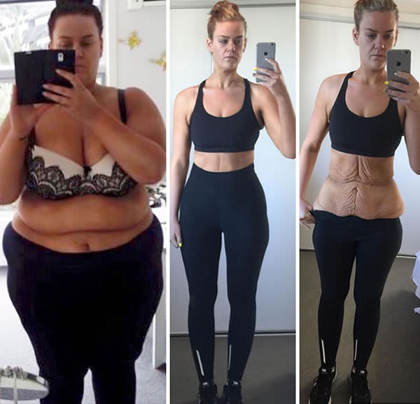 10 súlycsökkenés 6 hónap alatt