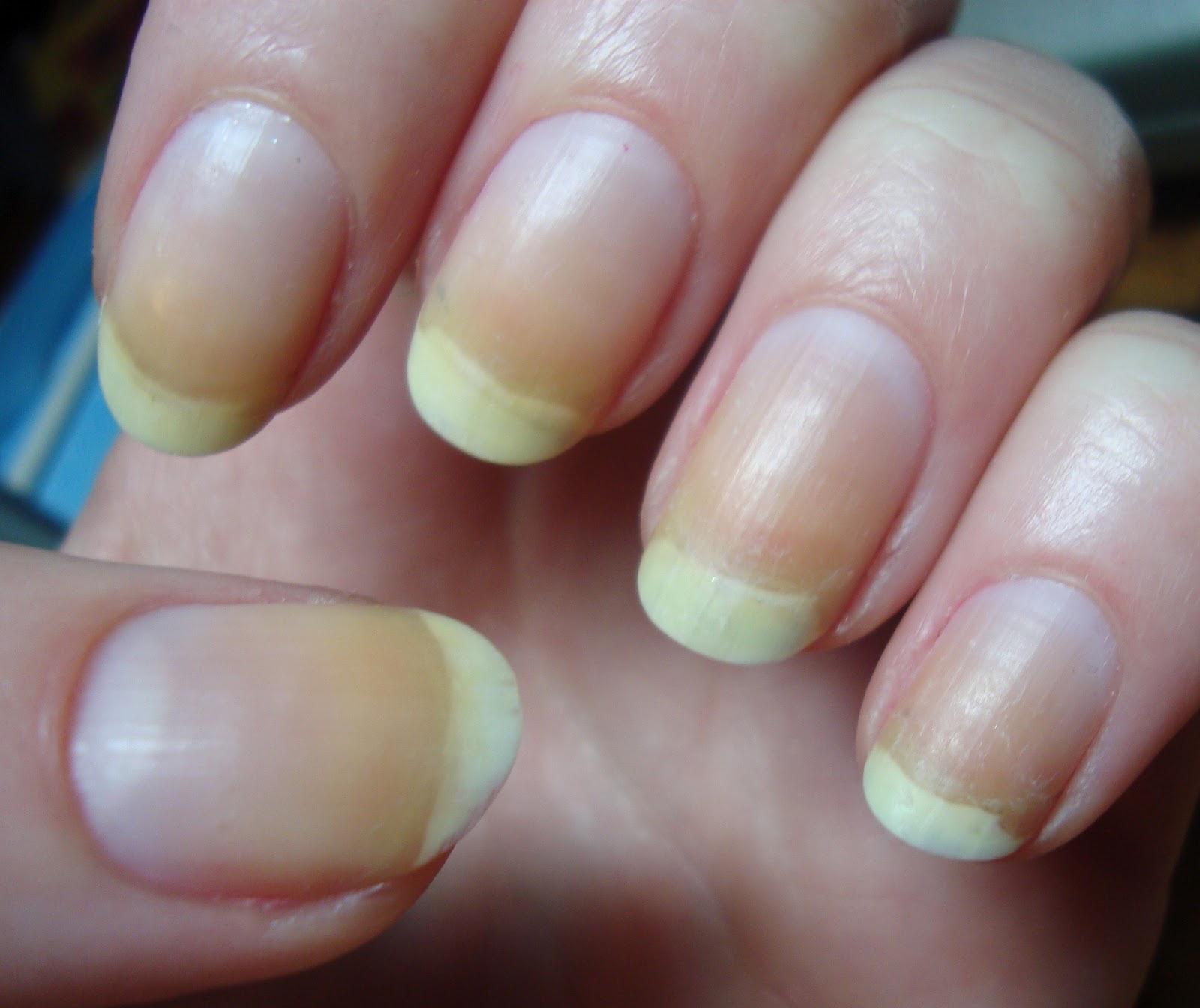 12 elváltozás a körmökön, amit érdemes megmutatni a bőrgyógyásznak!