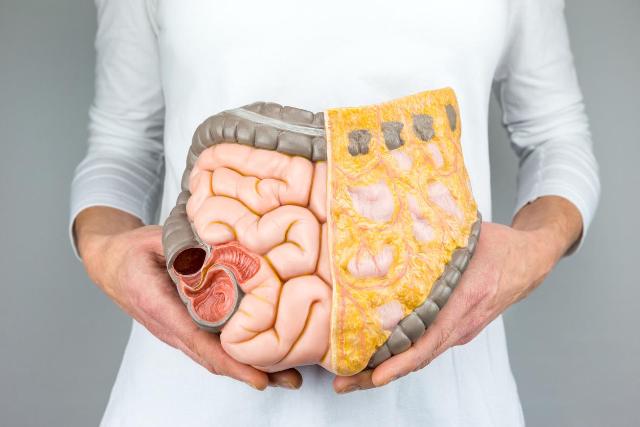 hogyan lehet eltávolítani a zsírt a testéből