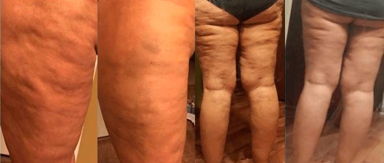 elveszíti a testzsírt és a cellulitot