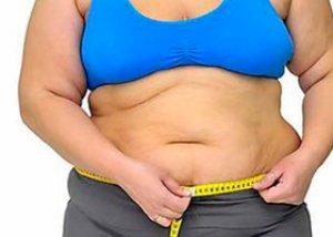 morbidly elhízott nő lefogy