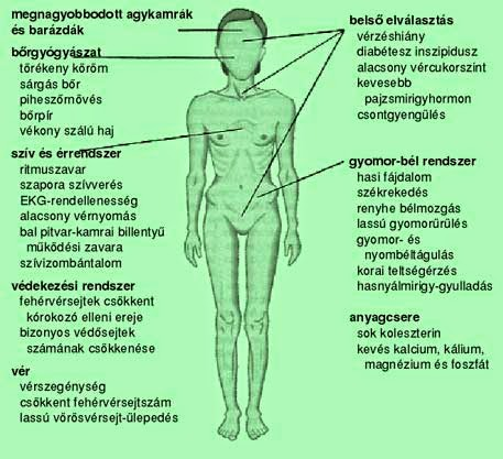 Az anorexiasok mennyi idő alatt fogynak olyan sokat?