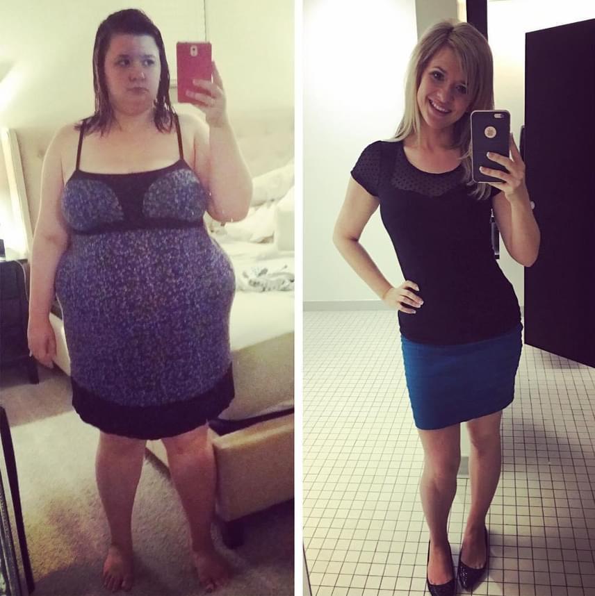 """Skinny fat – a """"zsíros csontváz"""" jelensége"""