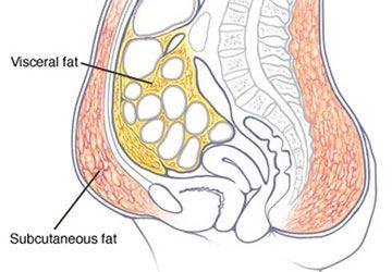 hogyan lehet elveszíteni a zsírt a csípőmről