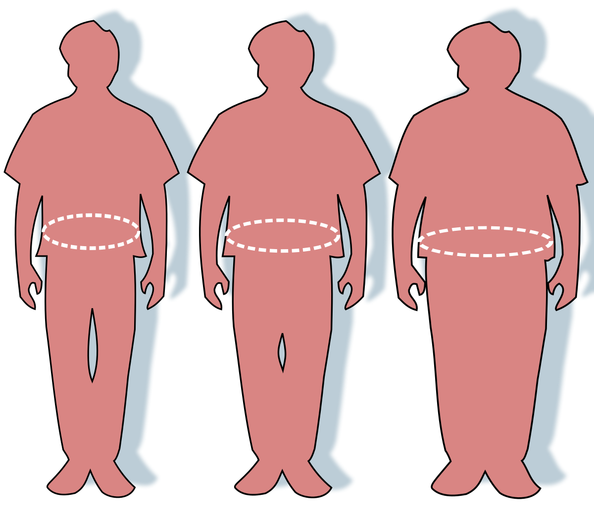az elhízás könnyen lefogy