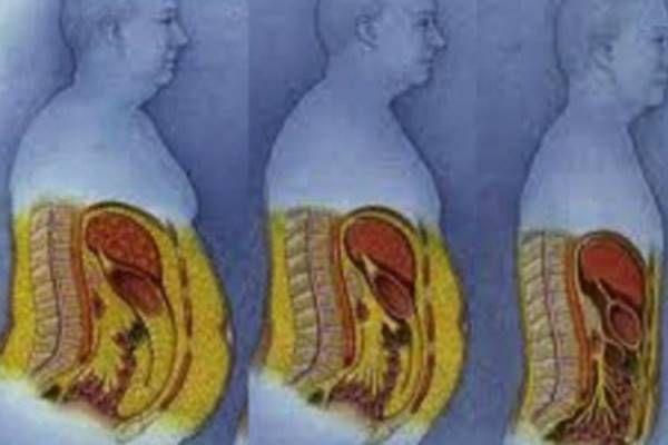 fogyás cellulitis