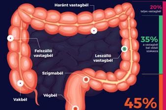 vékonybél gyulladás tünete a mulethi segít a fogyásban