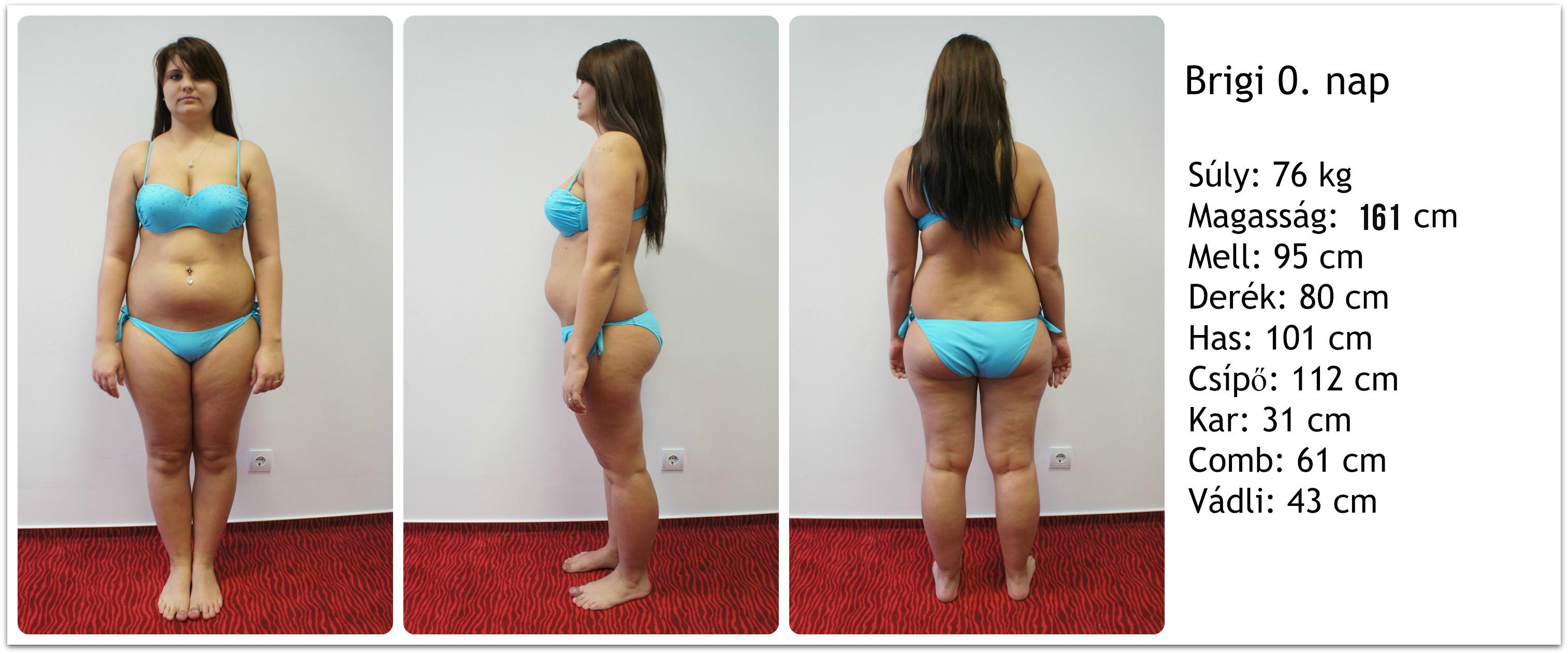 Kíméletlen őszinteséggel mutatta meg a fiatal lány, milyen 75 kilót fogyni