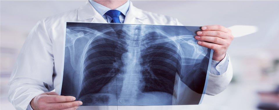Emfizéma (tüdőtágulat) - EgészségKalauz