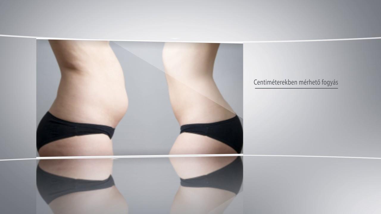 Harc a testzsír és a génjeink ellen - Blikk Rúzs