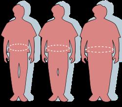 morbidly elhízott nő fogyás