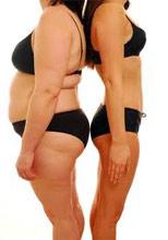 hogyan lehet eltávolítani a test zsírját 10 kg fogyás 1 hét alatt